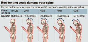How texting could damage your spine